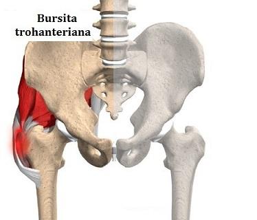 tratament comun bioptron cu umflarea și durerea articulației cotului