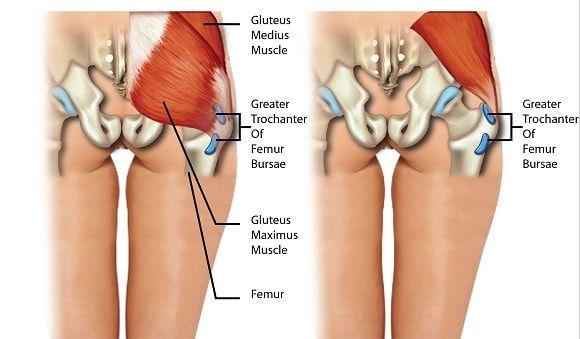 tratamentul artrozei în saki artrita reumatoida juvenila a gleznei