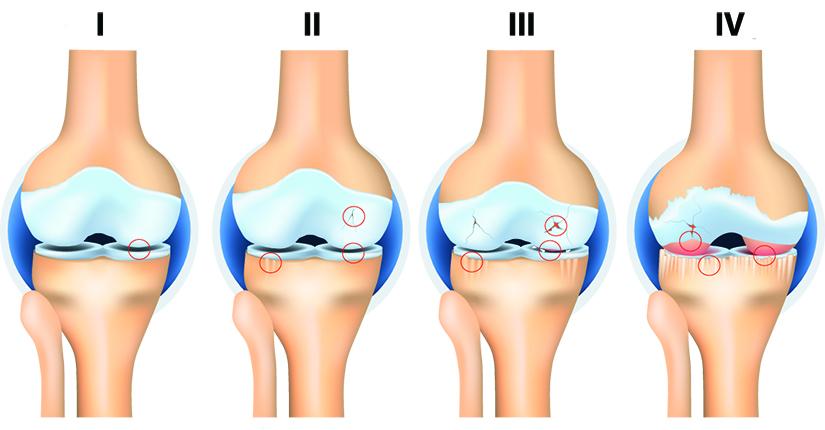artroza argiloasă a genunchiului