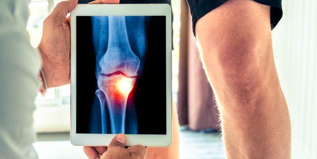 entorsă în tratamentul articulației genunchiului glucozamină și condroitină în tratamentul osteoartrozei