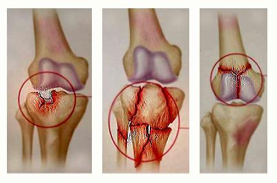 cursuri pentru artroza genunchiului