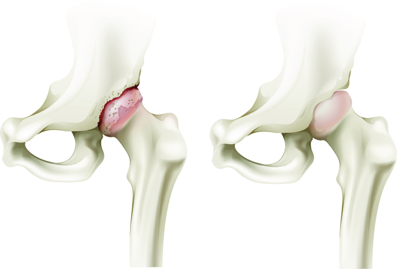 coxartroza tratamentului medicamentos pentru șold umflarea genunchiului pe interior