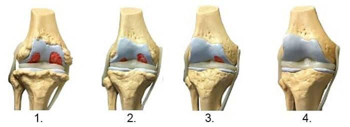 care vindecă articulațiile picioarelor