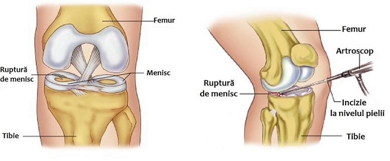 ce este o leziune la genunchi dieta durerii articulare a degetelor