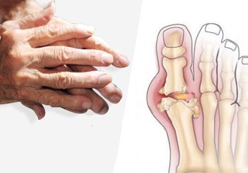 edem subcondral al genunchiului de la inflamația genunchiului