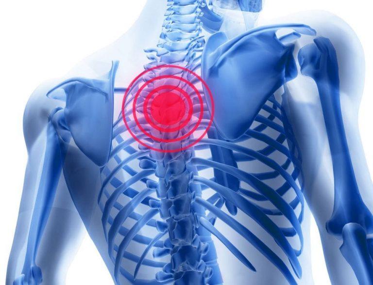 cel mai eficient remediu pentru osteochondroza toracică
