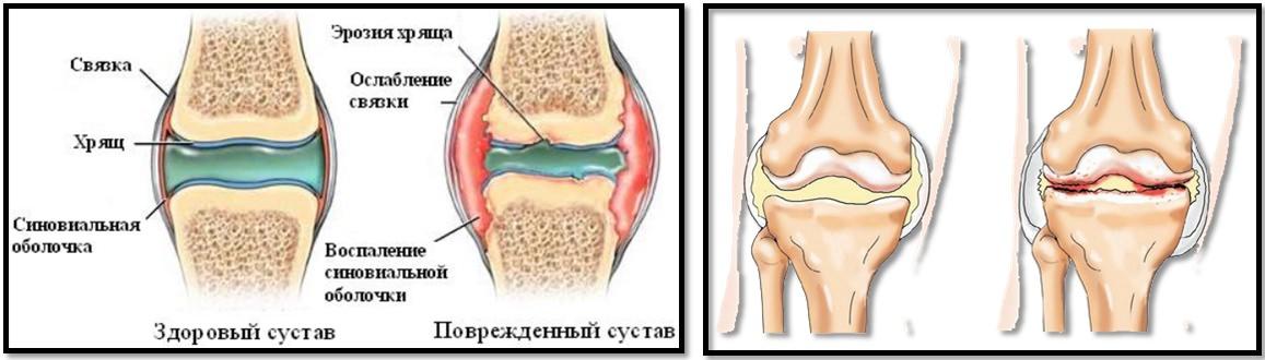 clase pe stepper cu artroza articulației genunchiului articulațiile și oasele doare decât să trateze