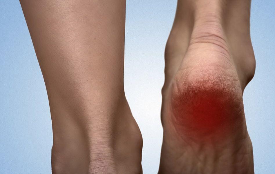 călcâi de tratament cu artroză