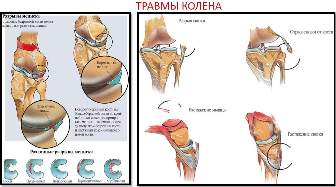 când articulațiile crăpau ceea ce se numește boală deformarea tratamentului cu artroză artroză