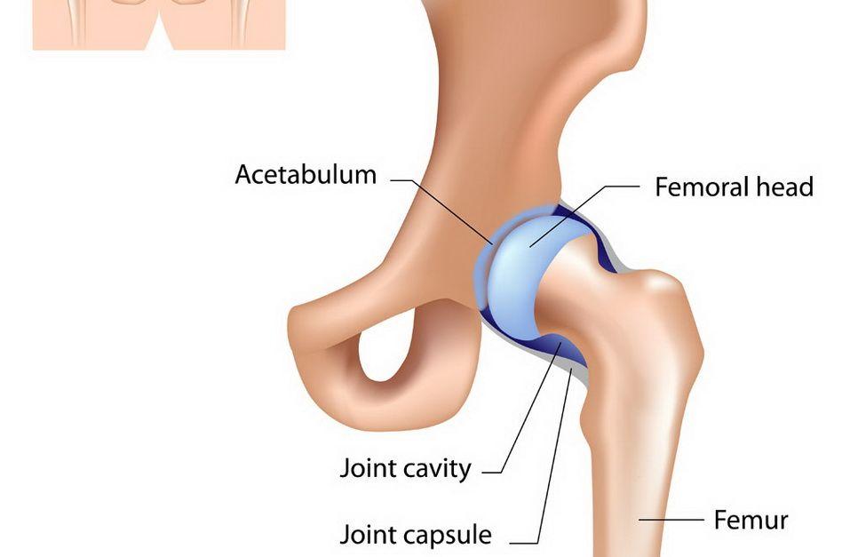 complicații ale durerilor de artroplastie articulară tratament articular în estonia