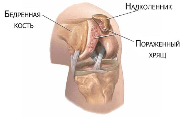 Acute Cauze De - Crăpături ale genunchiului fără durere