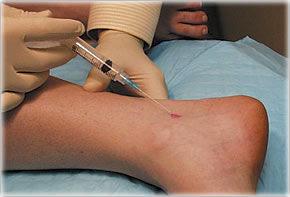 Injecții de durere în articulațiile picioarelor