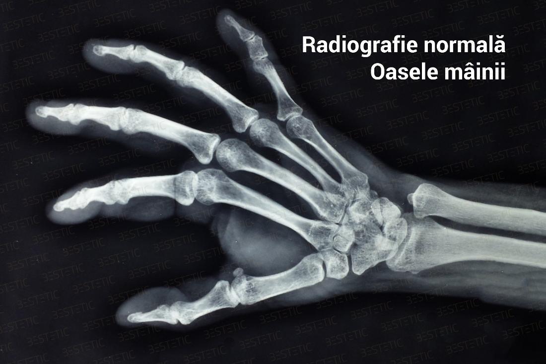 artrita articulațiilor degetelor mâinii dureri articulare tiroidiene