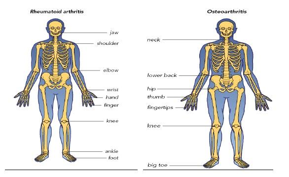 clasificarea bolilor de șold