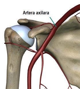 Artroza umărului posttraumatic. Artroza, artrozele