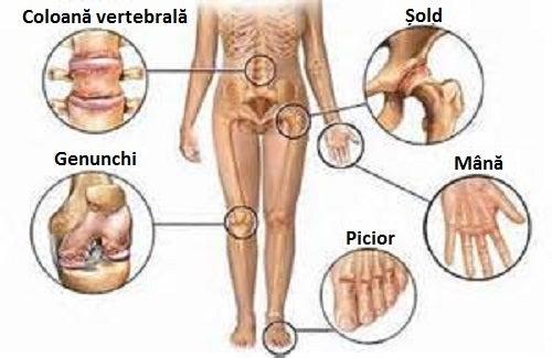 dureri de unguent în osteochondroză
