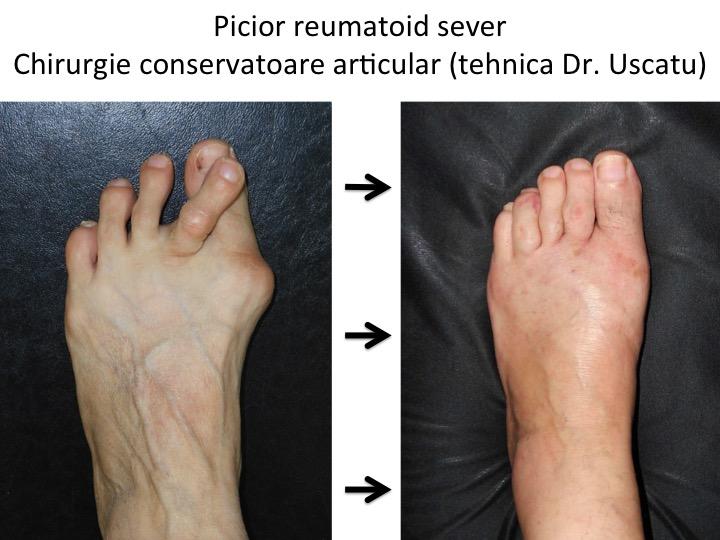 deformarea artrozei articulațiilor piciorului stâng