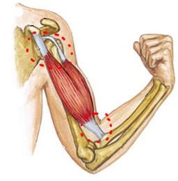 deteriorarea articulației antebrațului