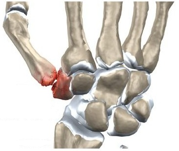 artroza gleznei de gradul 1 și tratament
