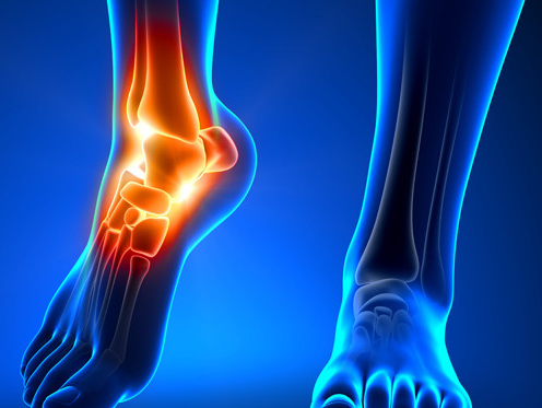 deteriorarea articulației gleznei este artroza simptomelor extremităților inferioare și recenzii ale tratamentului