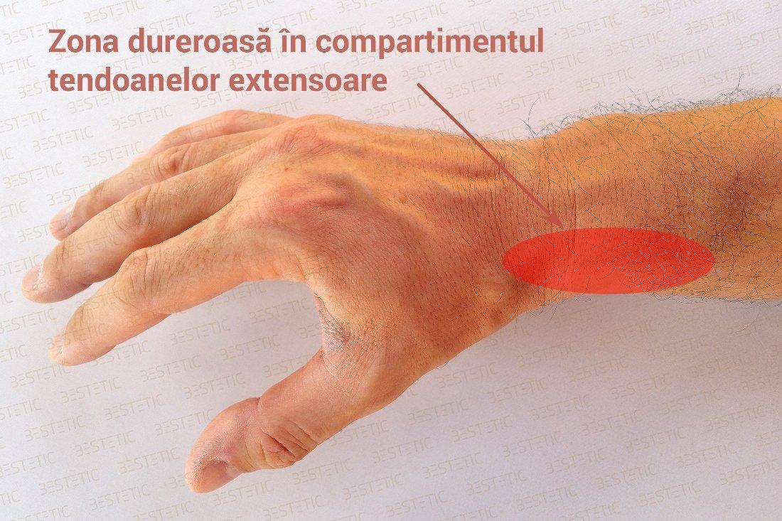 Câte ligamente ale articulației încheieturii mâinii. Cea mai recentă în tratamentul artrozei