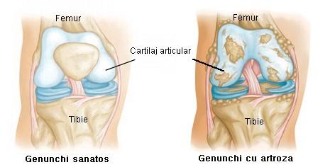 Distrugerea articulației artroze, Artroza | Arcadia Spitale si Centre Medicale