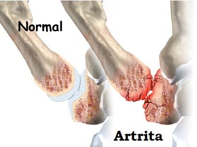 durere articulară a lunii degetului mare decât ameliorarea inflamațiilor articulare