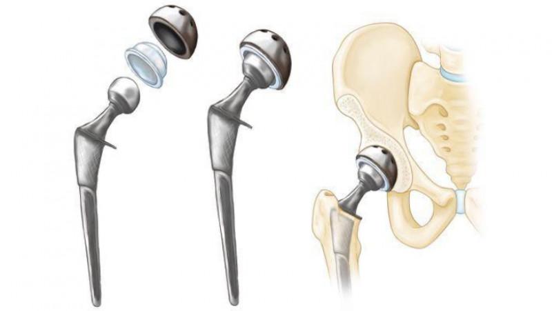tratament pentru nervul ciupit în articulația cotului