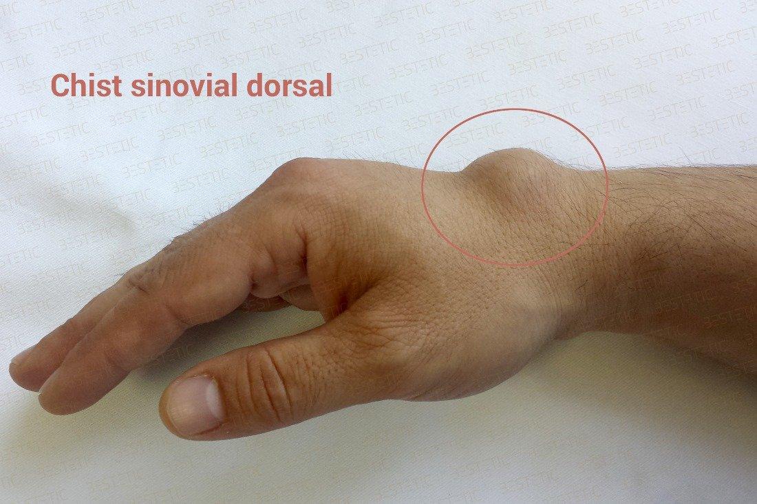 durere în articulația încheietura mâinii stângi
