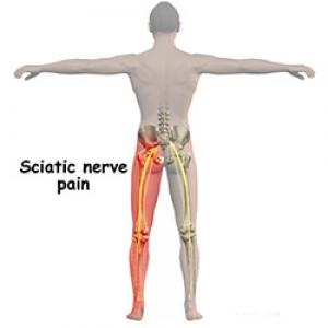 Articulațiile picioarelor pelvisului doare. Durerea de picioare - cum o combatem? | Medlife