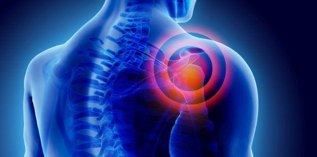 durere în articulația umărului cu patologie cervicală