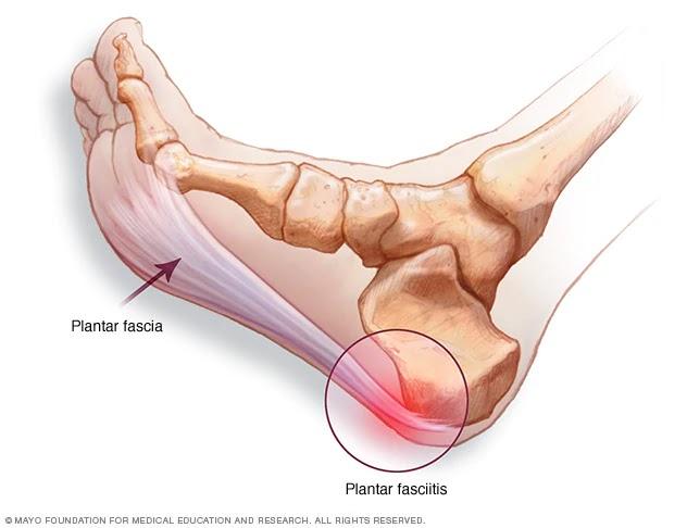 antibiotice pentru dureri de umăr balsam de cremă pentru artroplastia articulațiilor cu arnica