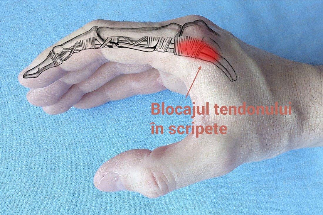 durere sacadată în articulația degetului mare