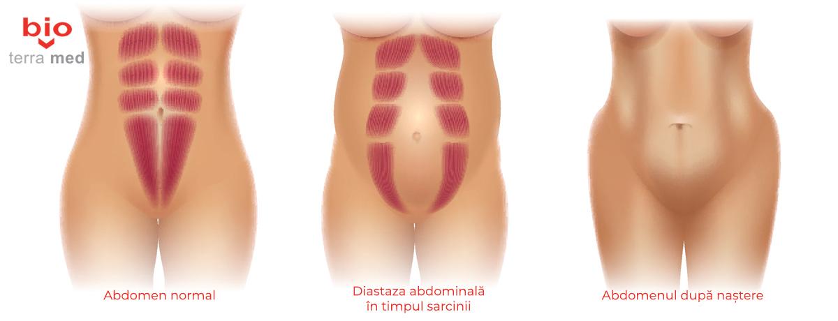 cauze ale inflamației ligamentelor și articulațiilor durerile articulare ale bolilor hepatice