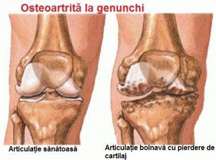 dureri articulare crampe de noapte artrita reumatoidă fără leziuni articulare