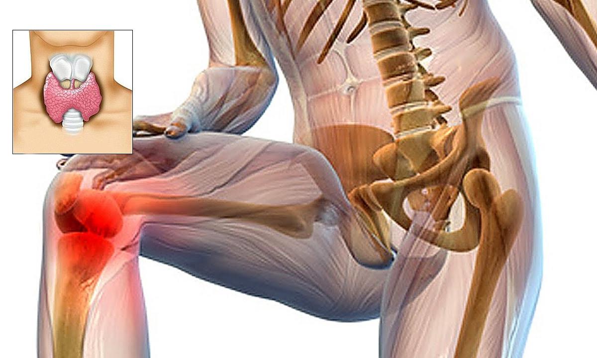 dureri articulare cu tiroidită autoimună