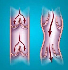 dureri articulare varicoase provoacă dureri la nivelul articulațiilor șoldului