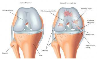 medicamente intravenoase cu osteochondroza artroza mâinilor și cauzelor