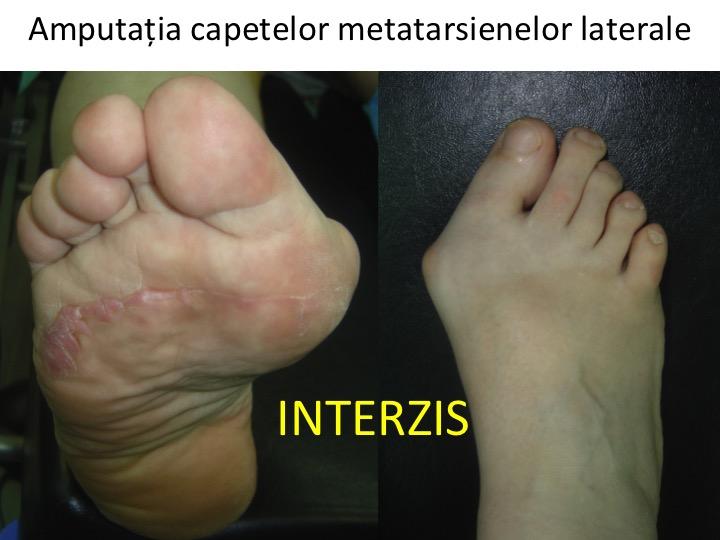 dureri metatarsiene cum să alinați durerile articulare ale cotului