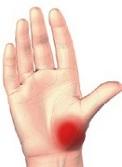 localizarea durerii în articulația degetului mare