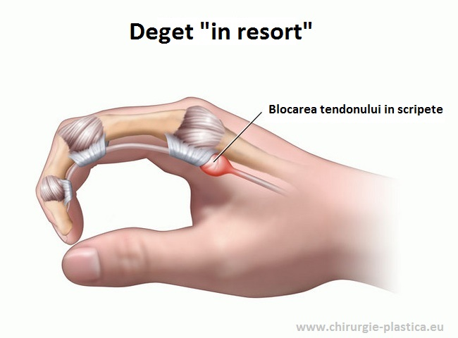 de ce durează articulația de pe degetul mijlociu