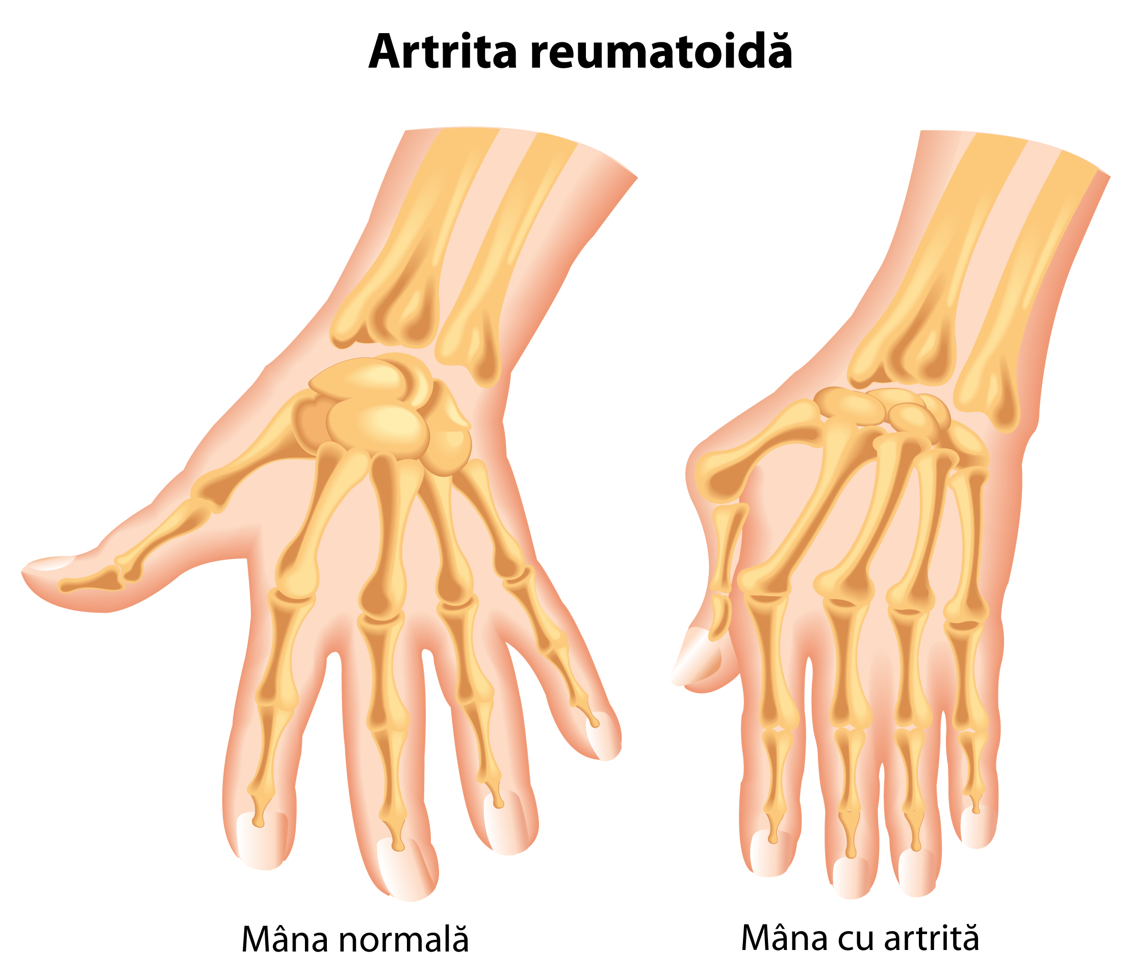 articulațiile degetelor rănesc noaptea
