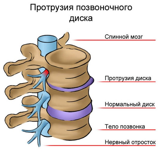 Tratamentul medicamentos al osteocondrozei cervicale