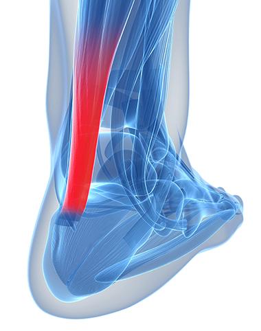 Tratamentul inflamației tendoanelor gleznei