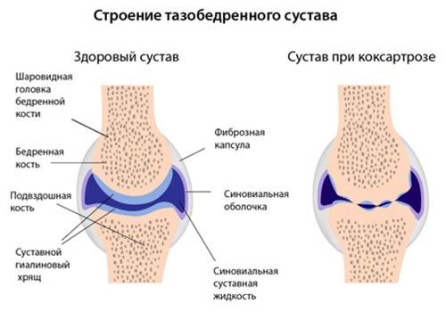 tratamentul coxartrozei 4 grade a articulației șoldului tratamentul articulațiilor țesutului conjunctiv