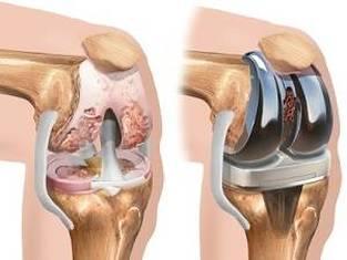 exacerbarea artrozei și tratamentul genunchiului simptomele artrozei tratamentului articulației șoldului de gradul 2