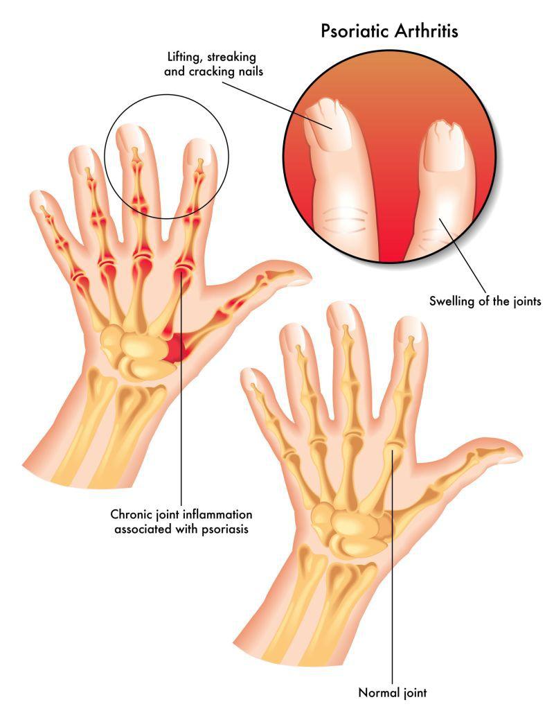 cum să tratezi artrita inflamatorie