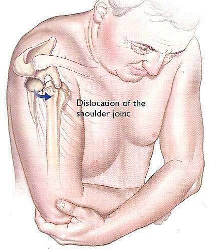 Durerea de umar Ruperea tratamentului articulației umărului toporului