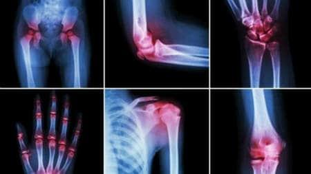 ce să examineze pentru durerile articulare