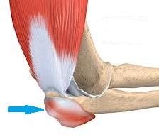 tratamentul osteomielitei cotului hematologia durerii articulare